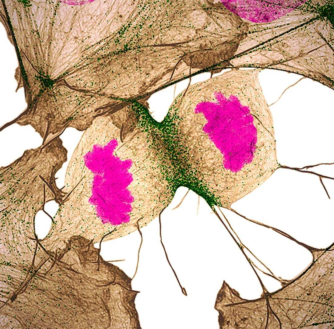 Человеческие фибробласты (клетки соединительной ткани) в момент деления. Фотография заняла 11-е место. Нашвилл, штат Теннесси (США). Фото Dr. Dylan Burnette (...из интернета)